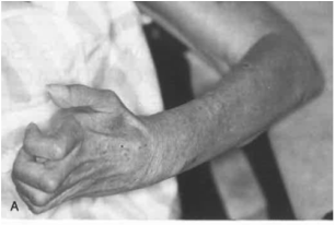 volkmann's ischemic contracture - hand & elbow conditions, Skeleton